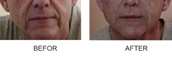 injectable-fillers-nasolabial_fold_before_after