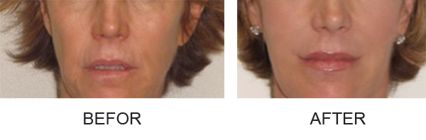 injectable_fillers_before_to_after
